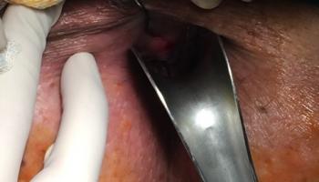 Περιεδρικό συρίγγιο-Θεραπεία με Laser