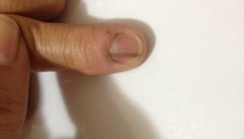 Παθήσεις δακτύλων χειρός